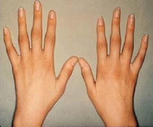 romatoid-artrite-bitkisel-yöntemler