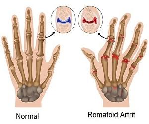 romatoid-artrite-iyi-gelen-bitkiler-nelerdir