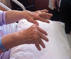 romatoid-artrit belirtileri-nelerdir